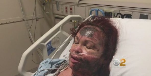 Victim said a black woman threw acid on her face, but then she confessed the truth